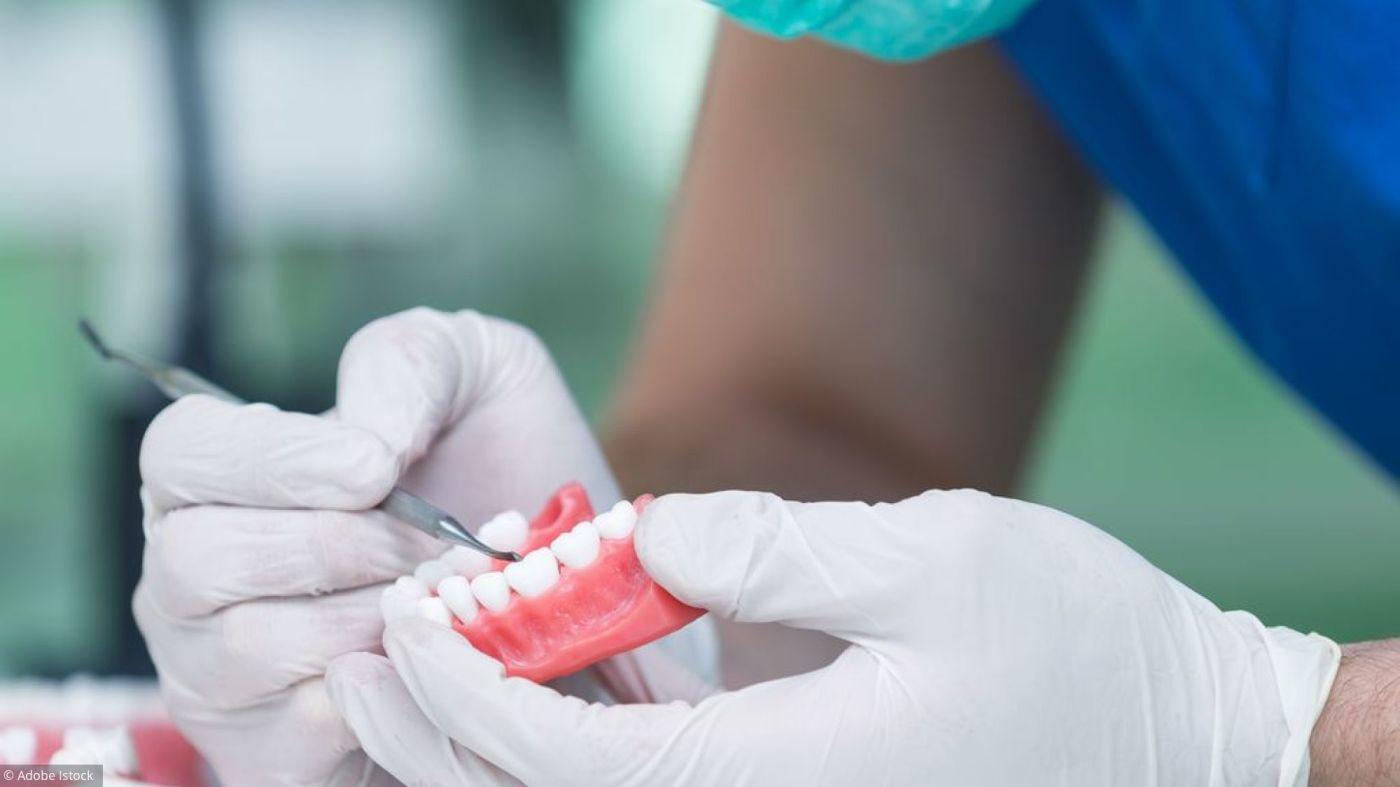 Implant dentaire : comment mettre en place un implant dentaire ?